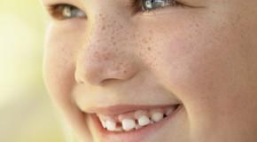Cuidado… Pecas que pueden mutar en cáncer de piel