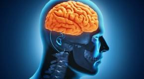 Lo que necesitas saber sobre los infartos cerebrales