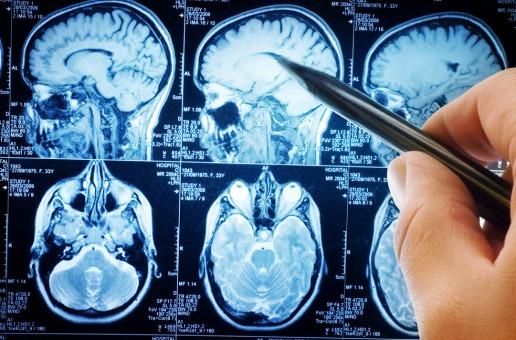 La contaminación envejece al cerebro